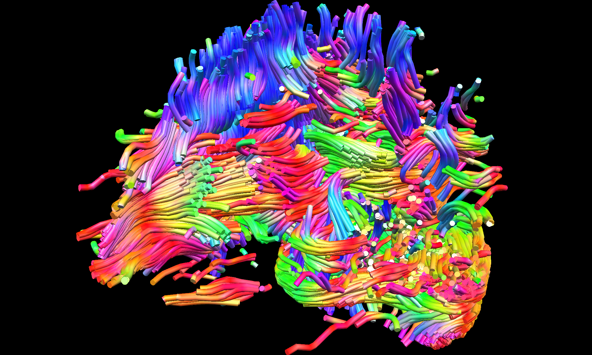 Lorin Strohm  (Fluid boundaries of perception - Lecture by Dr. Saskia Steinmann, Harvard Medical School 0)